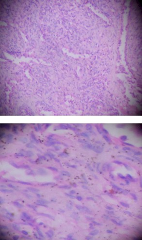 caso_hemangioma_esplenico/microscopio_anatomia_patologica