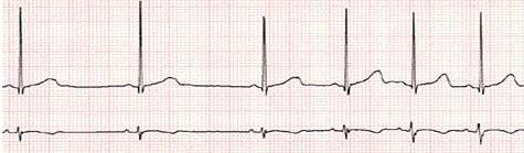 patologia_cardiovascular_deportistas/ecg_arritmia_sinusal