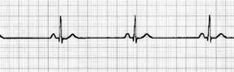 patologia_cardiovascular_deportistas/ecg_bradicardia_sinusal