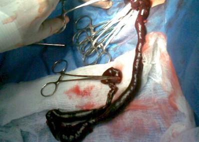 volvulo_necrosis_intestino/cirugia_reseccion_intestinal