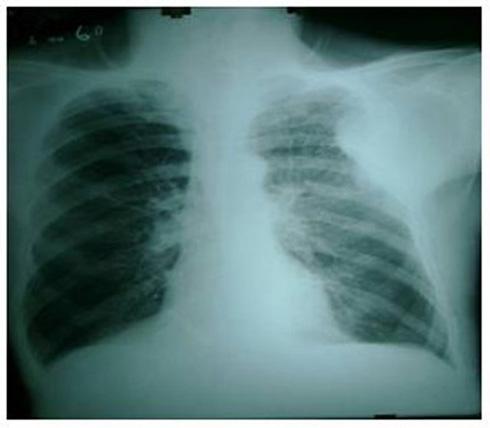 caso_mesotelioma_pleural/tumor_mesenquimal_frontal