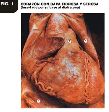patologia_electroionica_cancer/fibrosa_serosa_corazon
