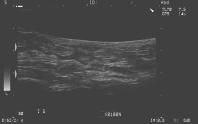 gestion_cancer_mama/ecografia_carcinoma_ductal