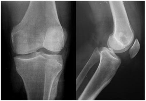 impactacion_condilo_femoral/radiografia_ap_lateral