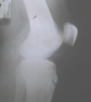 enfermedad_Osgood_Schlatter/radiografia_genu_recurvatum