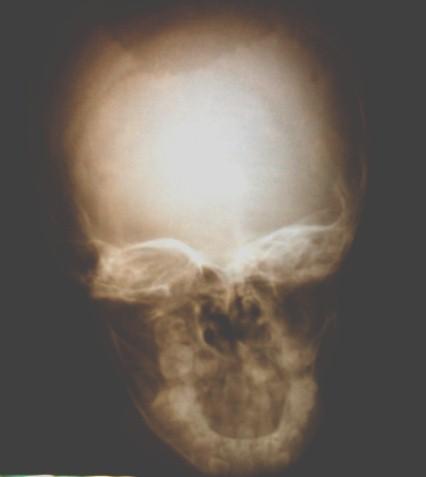 osteomielitis_boveda_craneal/RX_craneo_AP_frontal