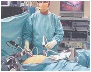 apendicectomia_laparoscopica_cirugia/posicion_tres_trocanteres