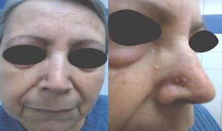 cancer_basocelular_nasal/carcinoma_lesion_cutanea