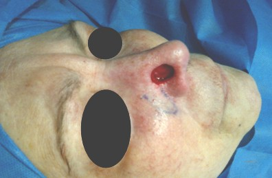cancer_basocelular_nasal/cirugia_extirpacion_reseccion