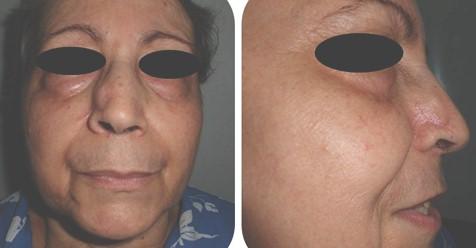 cancer_basocelular_nasal/evolucion_postoperatoria_meses