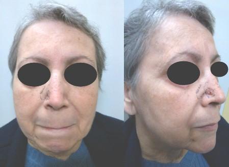 cancer_basocelular_nasal/marcaje_preoperatorio_lesion