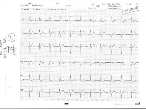enfermedad_coronaria_ECG/ECG_sin_dolor