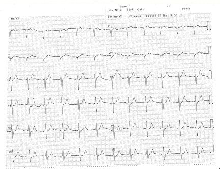 enfermedad_coronaria_ECG/ECG_sin_dolor_2
