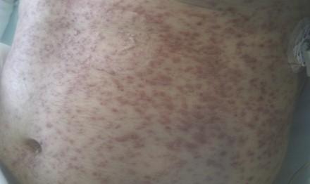 neumonia_infeccion_varicela/lesiones_cielo_estrellado