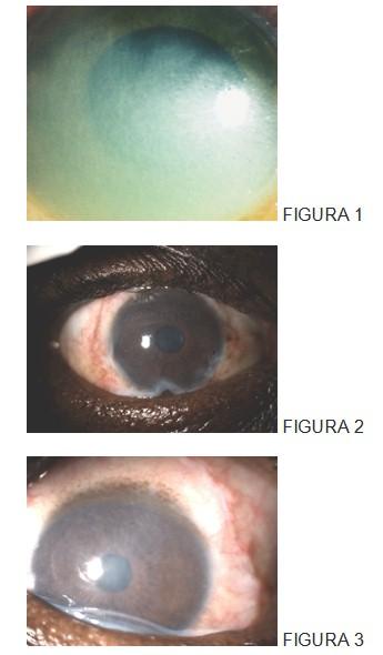 trasplante_membrana_amniotica/quemadura_ojo_oftalmologia