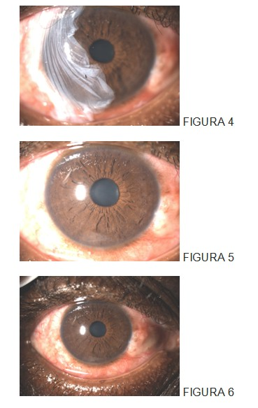 trasplante_membrana_amniotica/quemaduras_ojo_oftalmologia