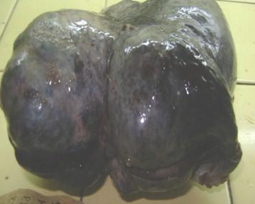 tumor_caso_Brenner/extirpado_anatomia_patologica