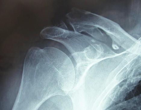 caso_duplicacion_clavicular/radiografia_RX_imagen