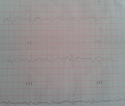 S1Q3T3_TEP_tromboembolismo/pulmonar_ECG_electrocardiograma