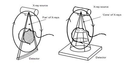 TAC_haz_conico/cone_beam_tomography