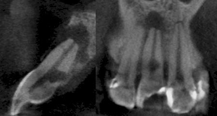 TAC_haz_conico/espacio_periodontal_CBCT