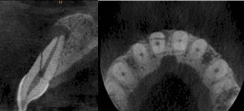 TAC_haz_conico/identificacion_fracturas_dentarias