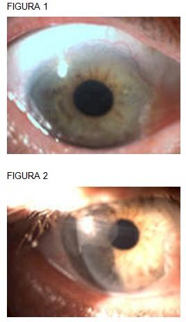 carcinoma_cornea_conjuntiva/extirpacion_cirugia_biopsia