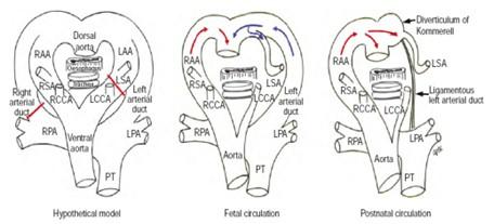 caso_anillos_vasculares/conducto_arterioso_izquierdo