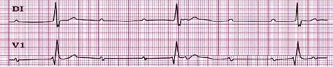 conocimientos_electrocardiografia_ECG/bloqueo_AV_tercer_grado