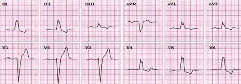 conocimientos_electrocardiografia_ECG/bloqueo_completo_rama_izquierda
