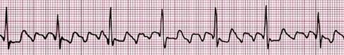 conocimientos_electrocardiografia_ECG/flutter_auricular_arritmia
