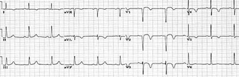conocimientos_electrocardiografia_ECG/infarto_agudo_miocardio