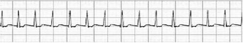 conocimientos_electrocardiografia_ECG/taquicardia_paroxistica_supraventricular
