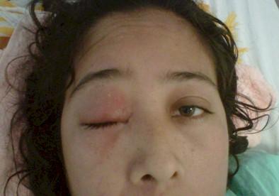 enfermedad_Chagas_caso/edema_parpado_palpebral