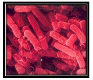 germenes_dialisis_peritoneal/bacteria_Klebsiella_pneumoniae