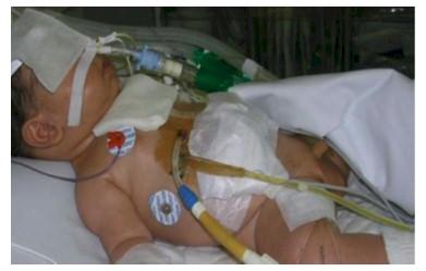 germenes_dialisis_peritoneal/cateter_dialisis_peritoneal