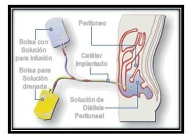 germenes_dialisis_peritoneal/solucion_bolsa_cateter