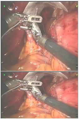 laparoscopia_ERGE_reflujo/finalizacion_fijacion_malla