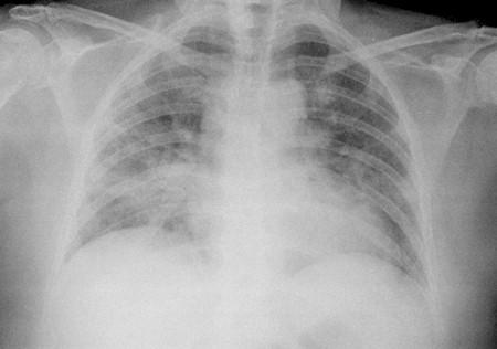neumonitis_secundaria_metotrexate/caso_clinico_radiografia