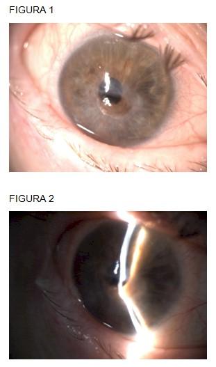 perforacion_ocular_Sjogren/paracorneal_hipotalamia_ojo
