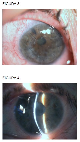 perforacion_ocular_Sjogren/queratoplastia_penetrante_ojo