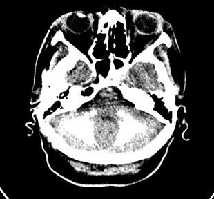 enfermedad-Fahr-caso/calcificacion-nucleos-cerebelo