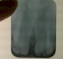 germinacion_dental_caso/camara_pulpar_compartida