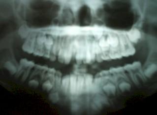 germinacion_dental_caso/incisivos_centrales_superiores