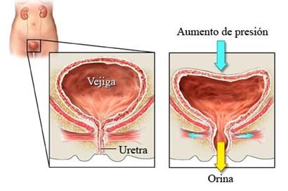 incontinencia_urinaria_causas/esfuerzo_sobreesfuerzo_presion