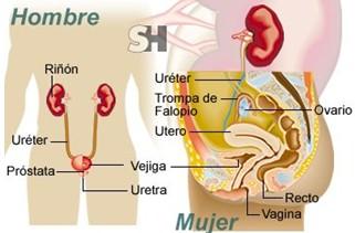 incontinencia_urinaria_causas/hombres_mujeres_mixta
