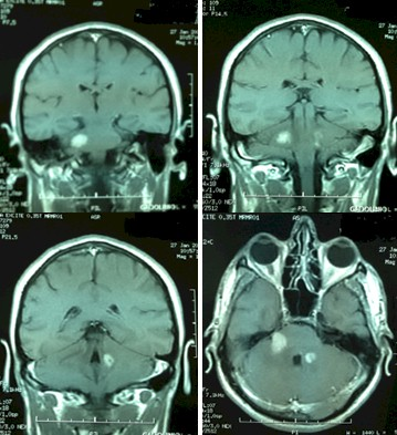 linfoma_cerebral_primario/resonancia_magnetica_cerebral