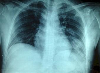 linfoma_cerebral_primario/tumor_radiografia_torax