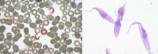 diagnostico_enfermedad_chagas/tripomastigote_tripanosoma_cruzi