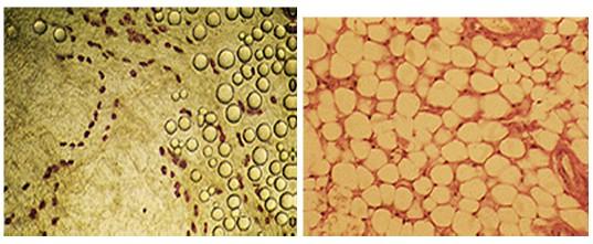 adipocito_tejido_adiposo/vision_microscopio_adipogenesis
